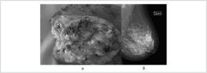 Распадающаяся опухоль молочной железы