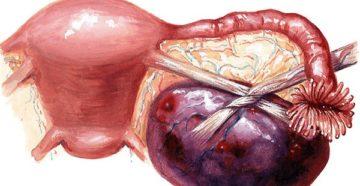 Киста яичников размеры для операции