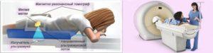 Фуз абляция миомы матки