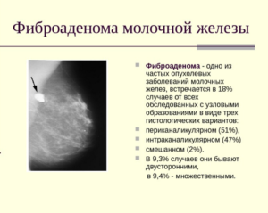 Фиброаденоматоз молочной железы лечение