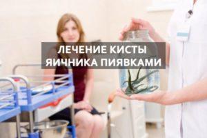 Гирудотерапия при кисте яичника