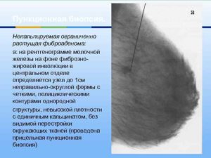 Что такое инволютивная фиброаденома молочной железы