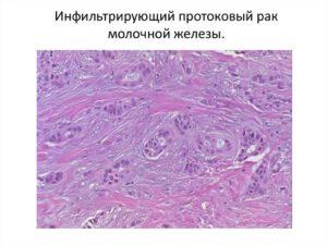 Инфильтрирующая карцинома молочной железы 2 степени