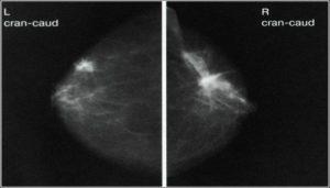 Как часто можно делать маммографию молочных желез после 50 лет