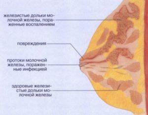 Уплотнение в молочной железе у кормящей мамы что делать