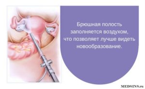 Кульдоцентез при кисте яичника