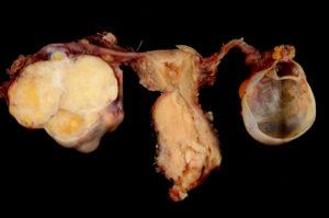 Аденокарцинома яичников 3 стадия